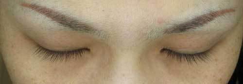 充血 ミノキシジル 目 の