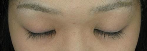の ミノキシジル 充血 目